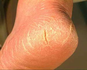 thick cracked skin on feet